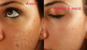 comparatif peau MIA 2